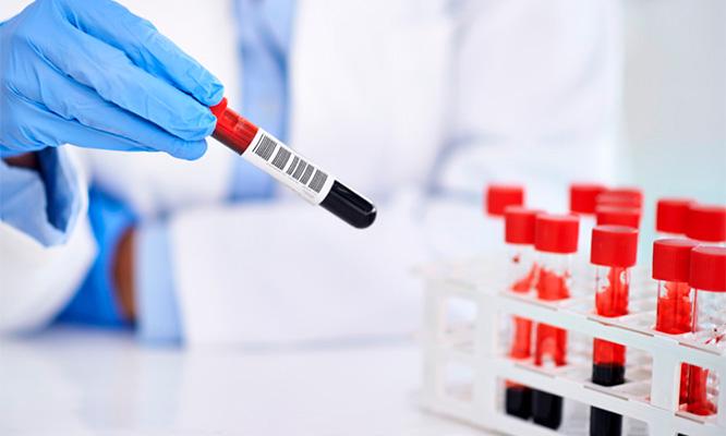 examen de triglicéridos